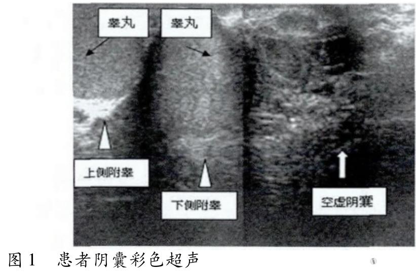 睾丸交叉异位症一例病例