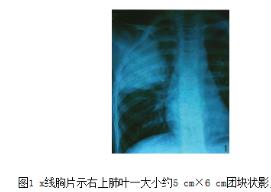 儿童肺硬化性血管瘤病例