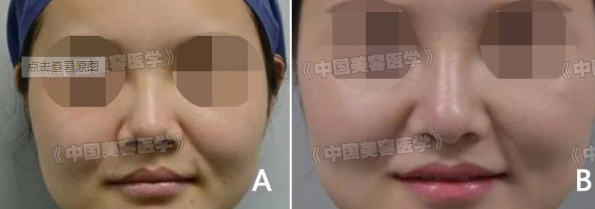 综合鼻整形术中自体耳软骨对鼻头支撑重塑