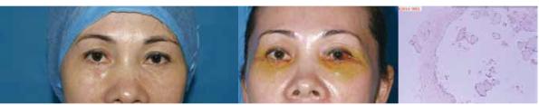 手术治疗泪沟填充术后囊肿病例