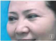 A型肉毒毒素注射去除面部表情纹无效果一例