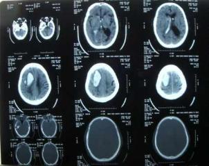 临床见一右侧颞顶叶脑内血肿病例