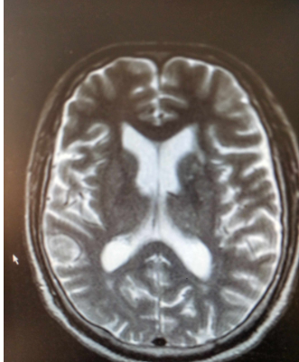 脑萎缩患者记忆力减退3年如何治疗?