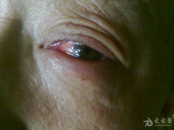 畏光流泪2天原来是角膜异物
