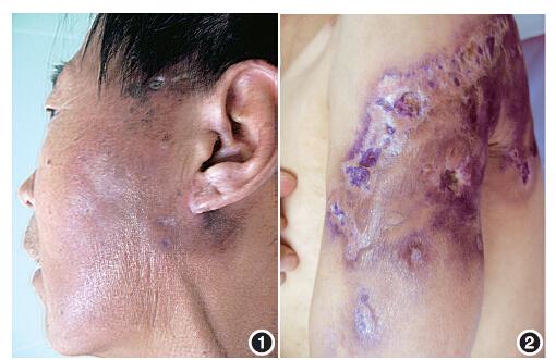 泛发性大疱性硬皮病一例