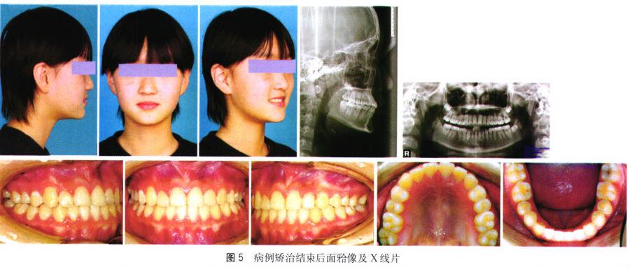 摆式矫治器辅助治疗骨性Ⅲ类磨牙前移拥挤一例