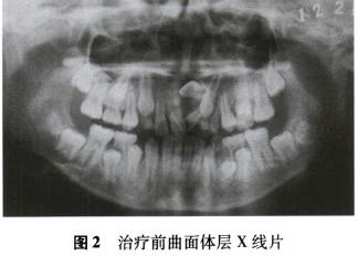 矫治上颌埋伏阻生前牙一例