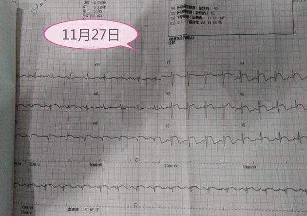 ST-T弓背向上抬高+肌钙蛋白阳性=心肌梗死?