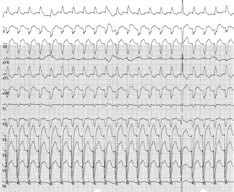 高血压致QRS波心动过速1例